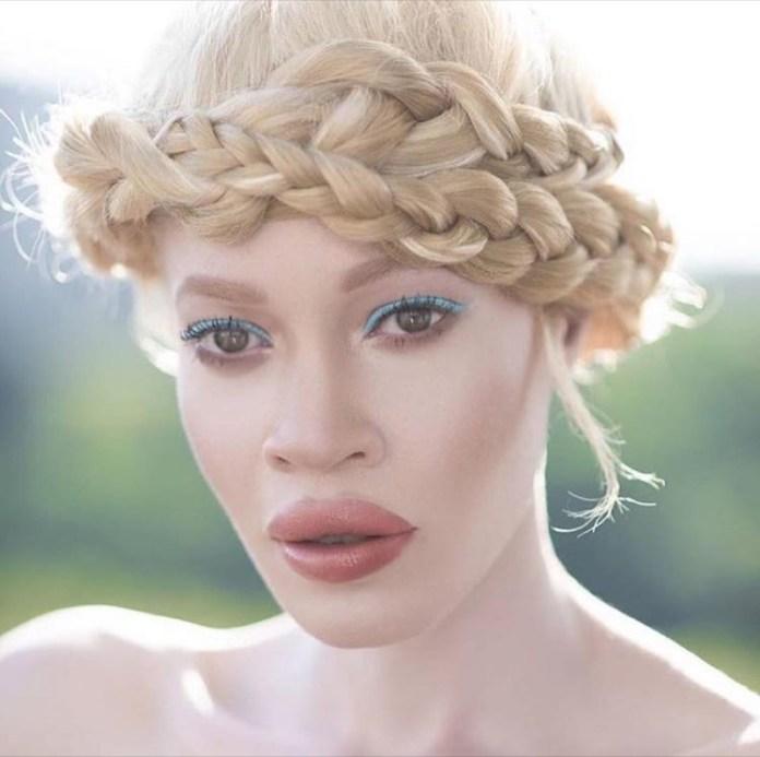 Skintone corretto per ragazza albine
